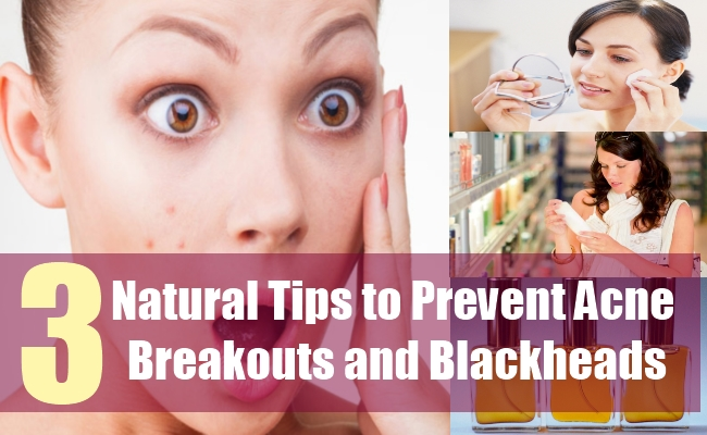 3 Natural Tips to Prevent Acne Breakouts and Blackheads