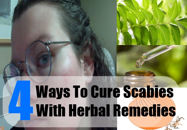 4 Ways To Cure Scabies With Natural And Herbal Remedies