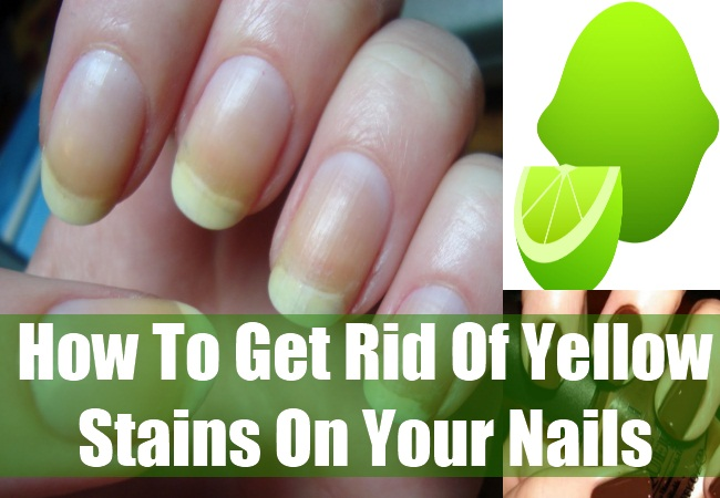 How To Get Rid Of Yellow Stains On Your Nails