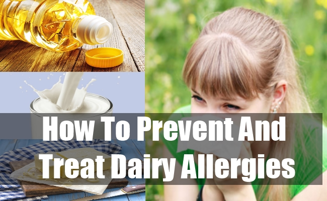 How To Prevent And Treat Dairy Allergies