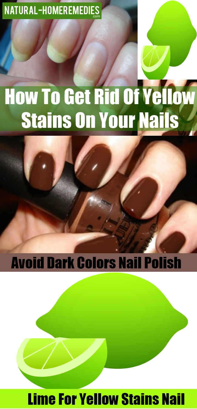 Image Led Get Rid Of White Spots On Your Nails Step 1