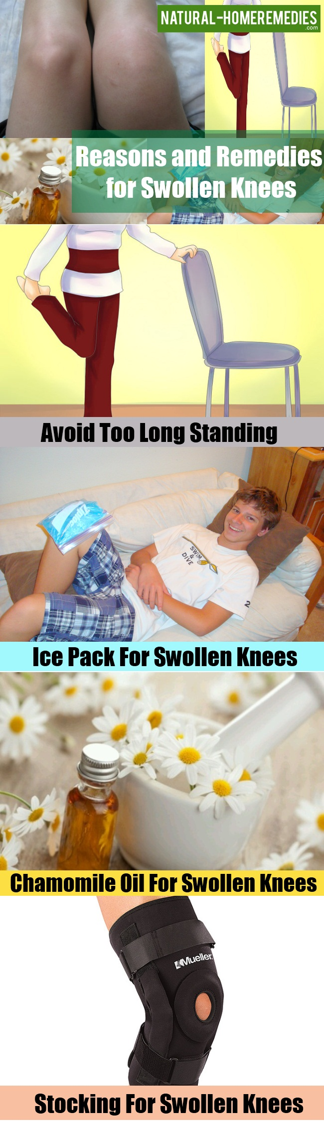 Remedies for Swollen Knees
