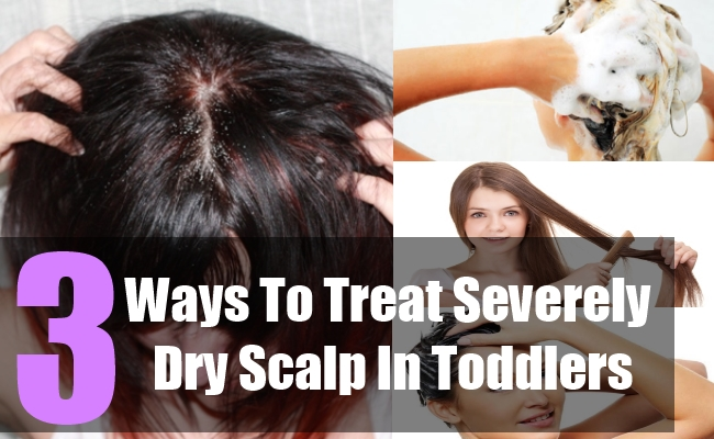 3 Ways To Treat Severely Dry Scalp In Toddlers