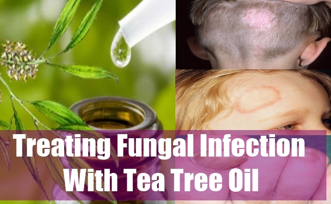 Treating Fungal Infection With Tea Tree Oil