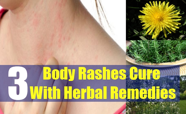3 Body Rashes Cure With Herbal Remedies