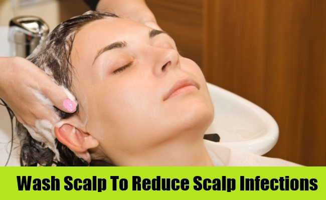 Wash Scalp To Reduce Scalp Infections