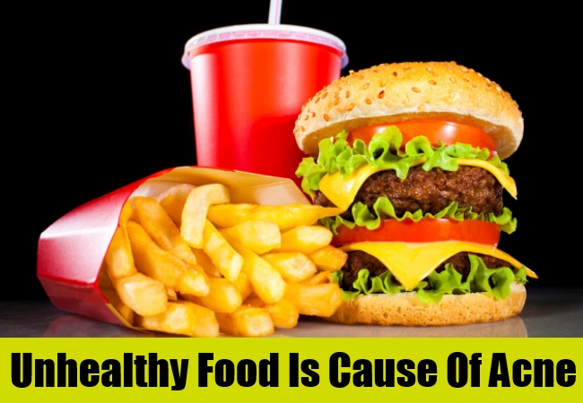 Unhealthy Food Is Cause Of Acne