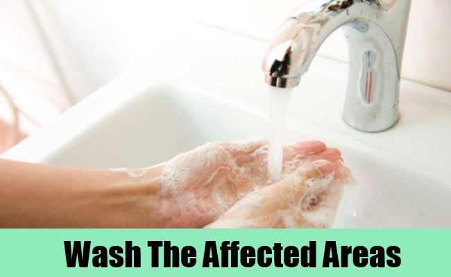 Wash The Affected Areas