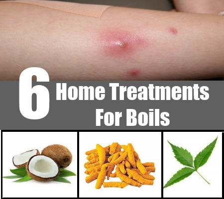 Home Treatments For Boils