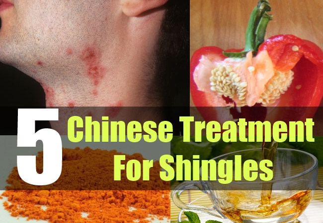5 Chinese Treatment For Shingles