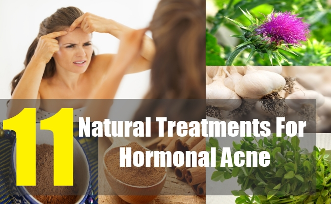 11 Natural Treatments For Hormonal Acne