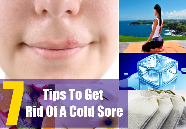 7 Tips To Get Rid Of A Cold Sore
