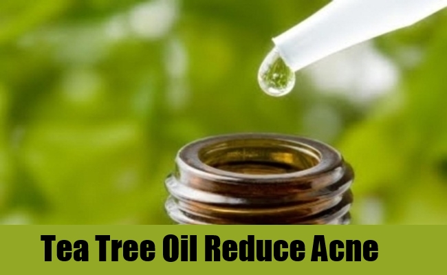 5 Best Herbs For Acne Treatment - How To Treat Acne With ...