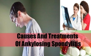 Causes And Treatments Of Ankylosing Spondylitis