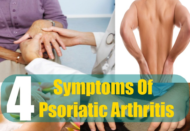 Natural Remedies For Psoriatic Arthritis