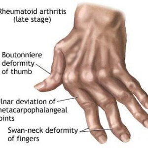 9 Types Of Arthritis