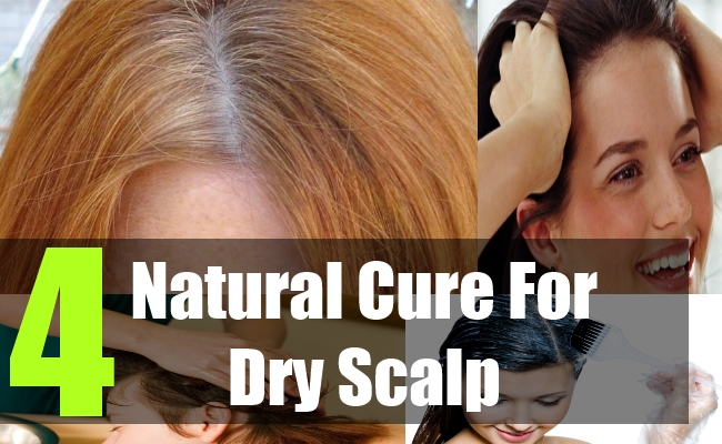4 Natural Cure For Dry Scalp