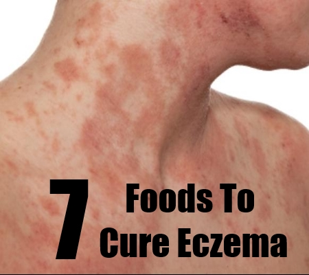 Super Foods That Cure Eczema - How To Cure Eczema Naturally Through