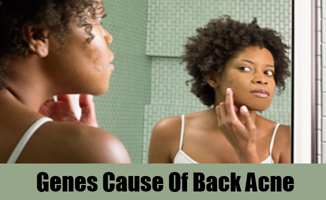 Genes Cause Of Back Acne