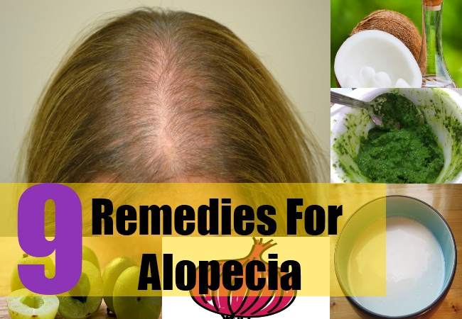 9 Remedies For Alopecia