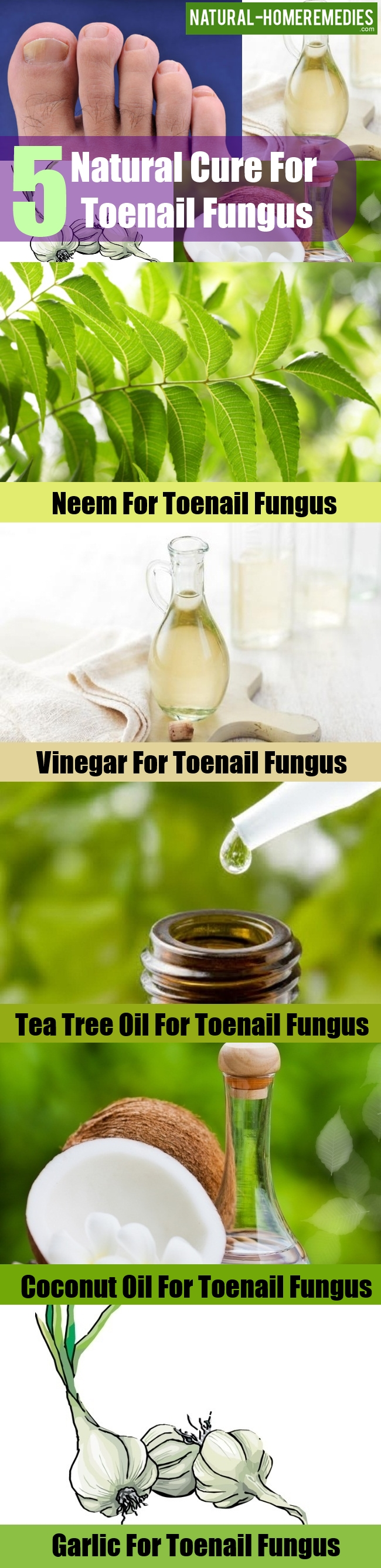 Natural Cure For Toenail Fungus