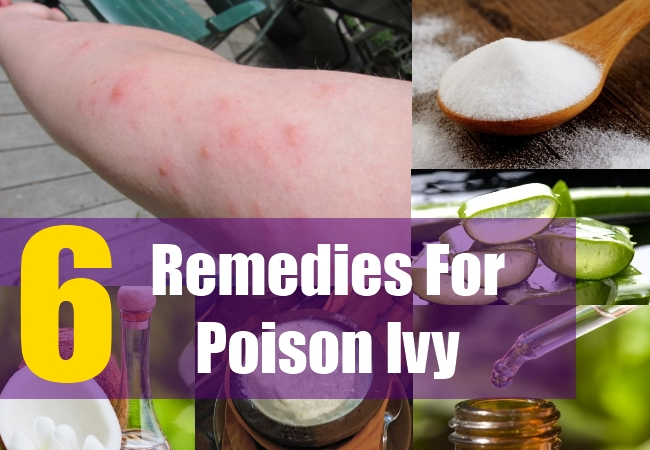 6 Home Remedies For Poison Ivy Natural Treatments Cure For