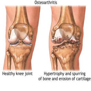 5 Most Common Causes Of Degenerative Arthritis