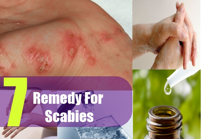 7 Remedy For Scabies