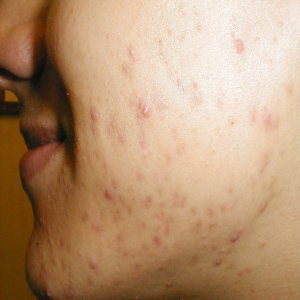 Acne Inversa Causes, Symptoms And Treatment