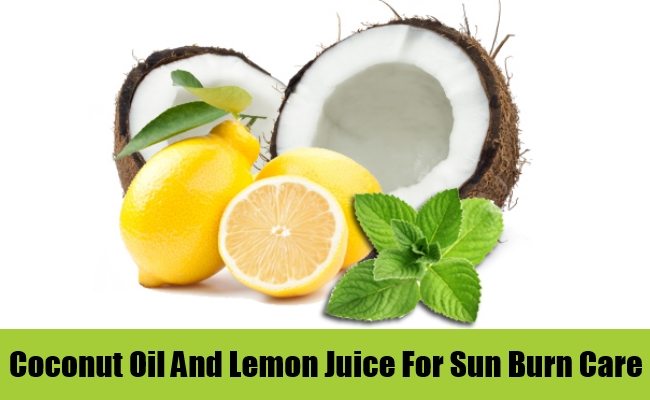 Coconut Oil And Lemon Juice For Sun Burn Care