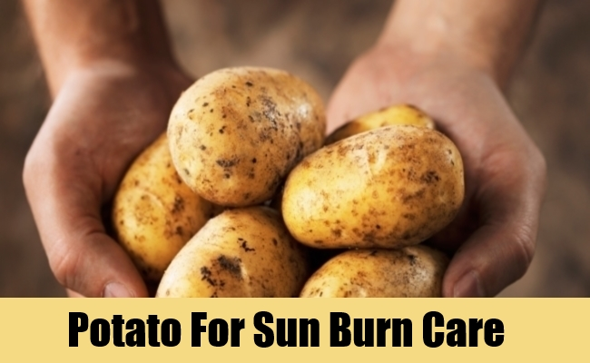 Potato For Sun Burn Care