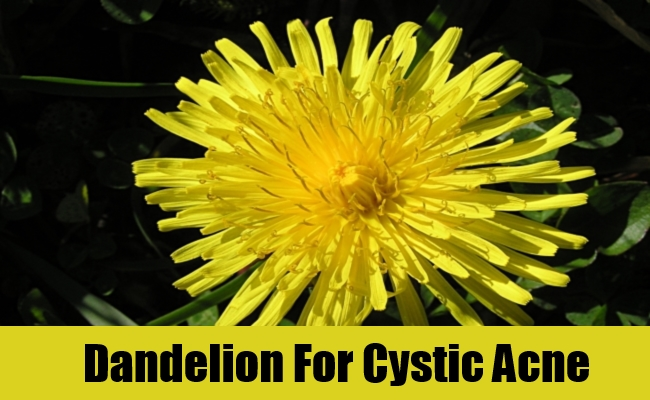 Dandelion For Cystic Acne