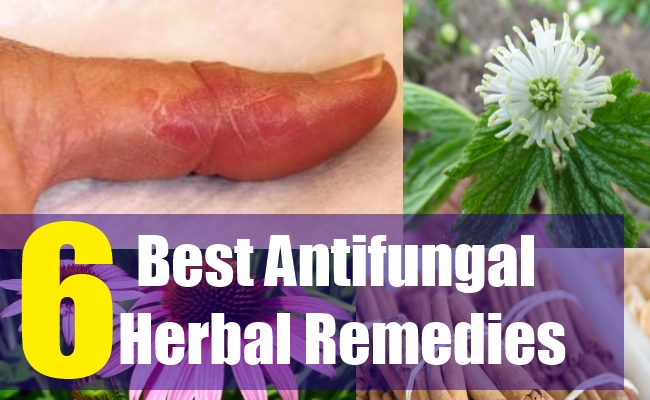 what cause anti fungal herbs