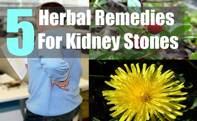 5 Herbal Remedies For Kidney Stones