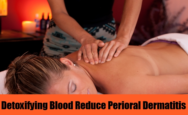 Detoxifying Blood Reduce Perioral Dermatitis