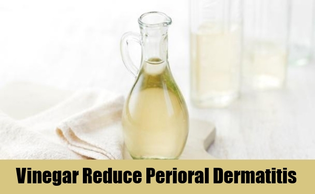 Vinegar Reduce Perioral Dermatitis