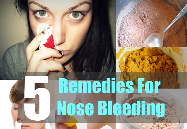 5 Remedies For Nose Bleeding