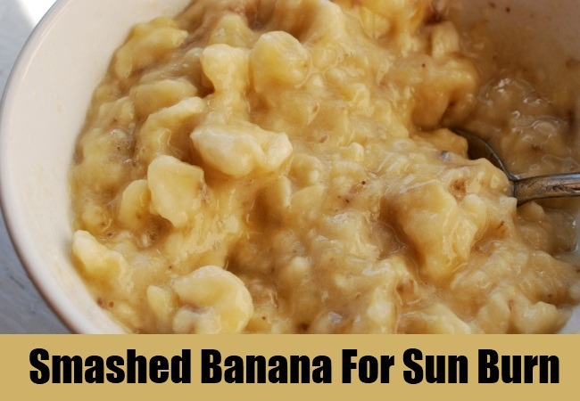 Apply Smashed Banana For Sun Burn