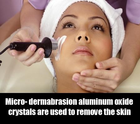Micro- dermabrasion