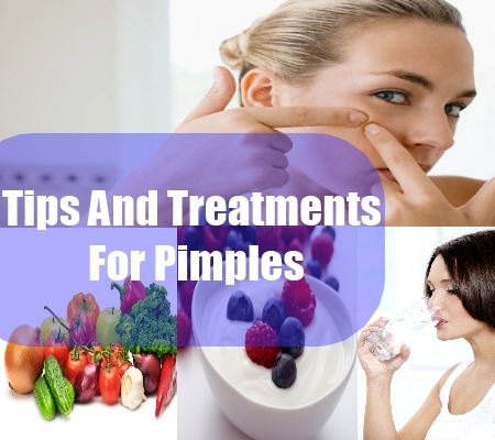 Tips And Treatments For Pimples