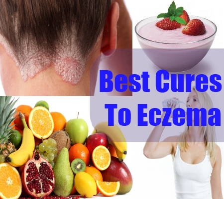 Best Cures To Eczema