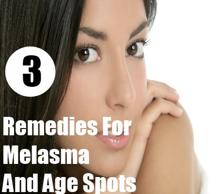 Melasma And Age Spots