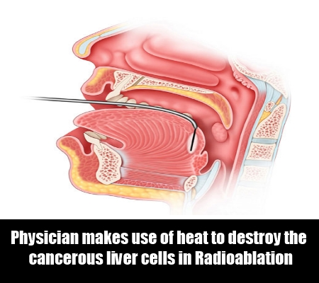 Radioablation Treatment1