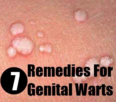 HELP! HERPES OR GENITAL WARTS? 2
