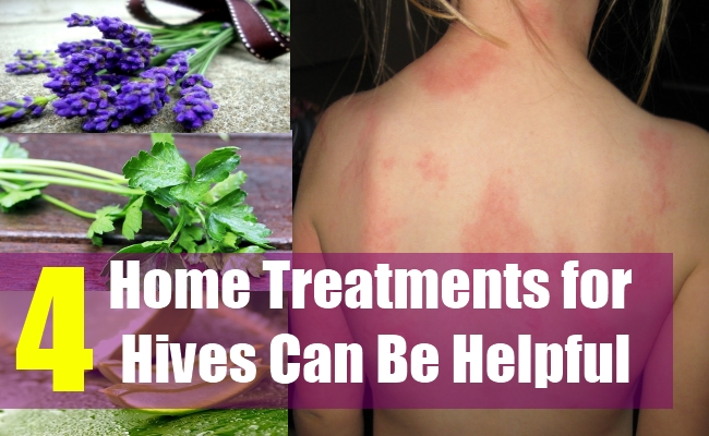 4 Home Treatments for Hives Can Be Helpful