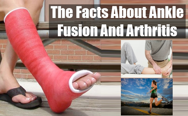Ankle Fusion And Arthritis