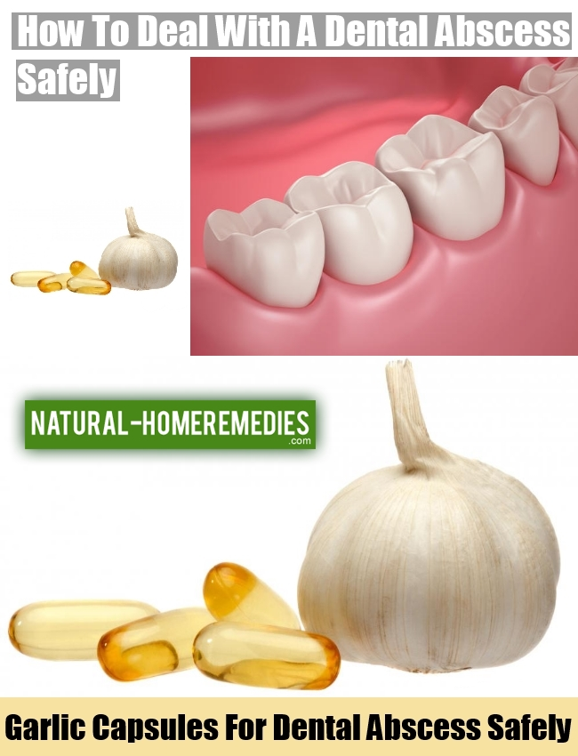 How To Deal With A Dental Abscess Safely