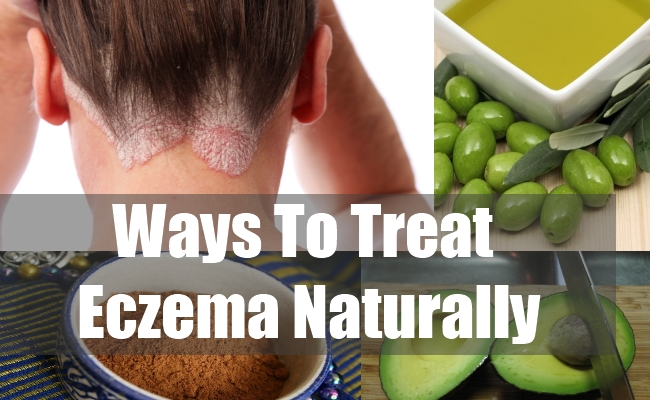 Ways To Treat Eczema Naturally