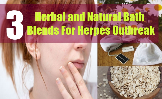 3 Herbal and Natural Bath Blends For Herpes Outbreak