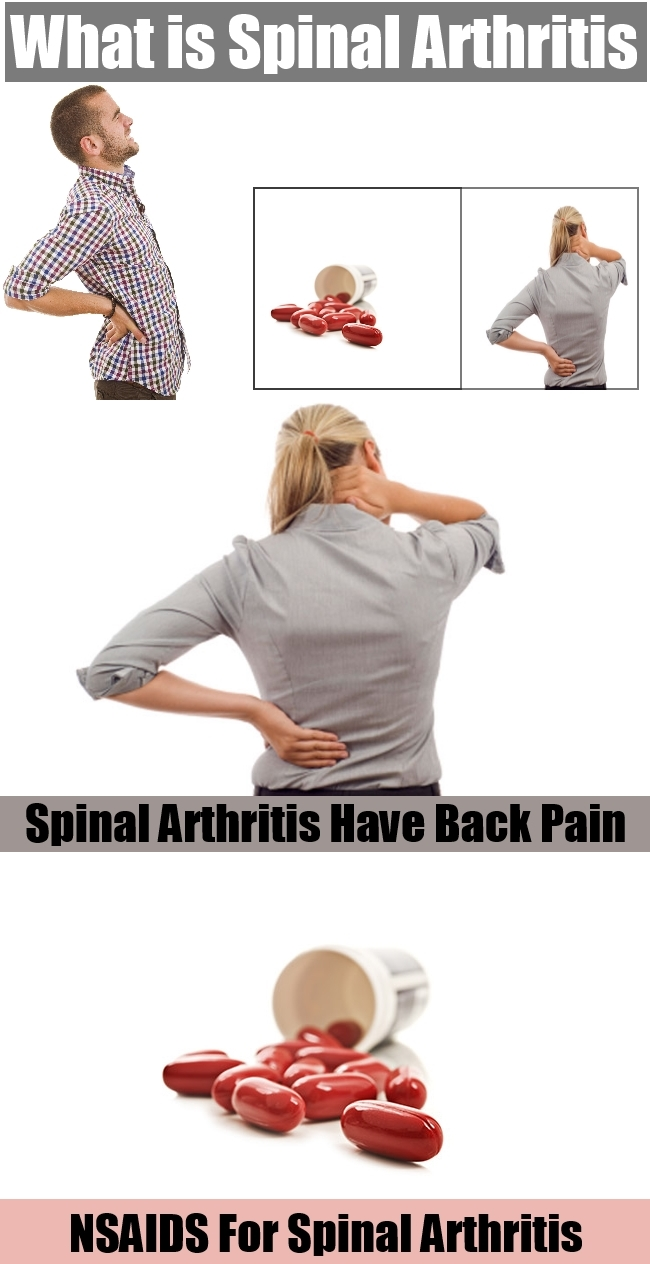 What is Spinal Arthritis